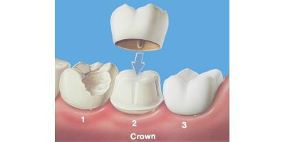 What is a dental crown and why do I need one?, Middlebury, Connecticut