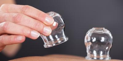 What Is Cupping Therapy & How Can It Help You?, New York, New York