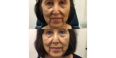 What You Need to Know About the Silhouette InstaLift™ Cosmetic Surgery, Honolulu, Hawaii