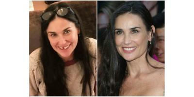 Demi Moore is missing her two front teeth! , Manhattan, New York