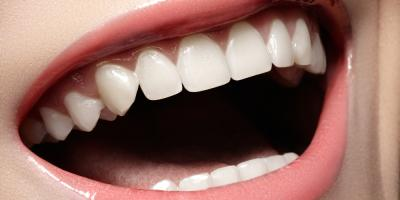 3 Cosmetic Benefits of Getting Dental Bridges, Springdale, Ohio