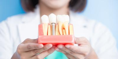 A Guide to the Different Types of Dental Implants, Ewa, Hawaii