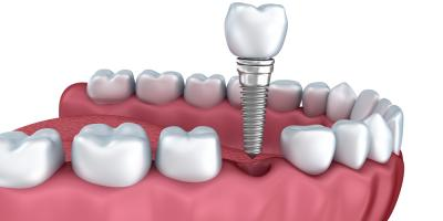 3 Reasons to Choose Dental Implants to Replace Missing Teeth, Athens-Clarke, Georgia