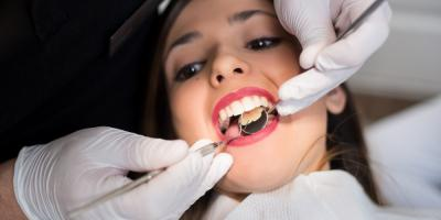 How Often Should I Visit My Dental Office?, Ripon, Wisconsin