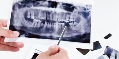 Dental Implants, Bridges, & Dentures: Facts About Restorative Options , McCleary, Washington
