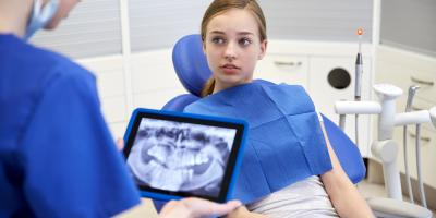 Oral Surgeon Answers Questions About Wisdom Teeth Extraction, Lincoln, Nebraska