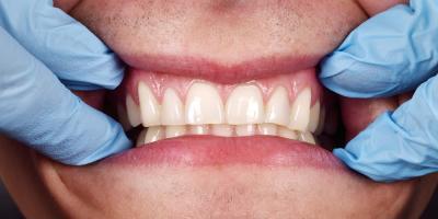 Ask a Dentist: What Causes Receding Gums?, Kingman, Arizona