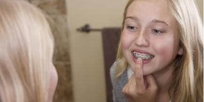 3 Tips for Flossing With Braces, Kannapolis, North Carolina