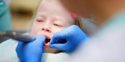 When Should Your Child's First Visit to the Pediatric Dentist Be?, Ewa, Hawaii