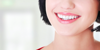 Dentist or DIY? What to Know About Teeth Whitening, Manchester, Connecticut