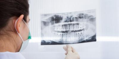 Olive Branch Dentist Answers FAQs on Dental X-Rays, Olive Branch, Mississippi