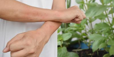 Top 5 Symptoms of a Poison Ivy Rash, East Cocalico, Pennsylvania