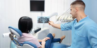 3 Common Reasons for Root Canal Therapy, Hamilton, Ohio