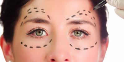 What Is Blepharoplasty? Eyelid Surgery Explained, Ellicott City, Maryland