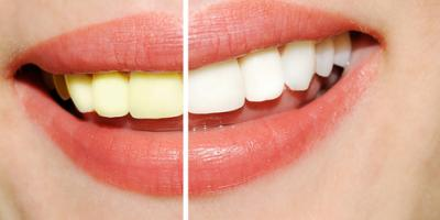 Why Teeth Change Color & How Your Dentist Can Help, Jack Jouett, Virginia