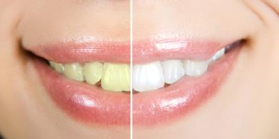 Treating 3 Side Effects Associated With Teeth Whitening, Big Rock, Arkansas