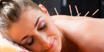 4 Acupuncture Myths Debunked, North Hempstead, New York
