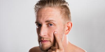 Dermatology Clinic Shares 4 FAQs About Adult Acne, Koolaupoko, Hawaii