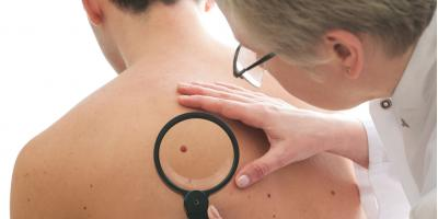 A Dermatologist on Common Symptoms of Skin Cancer, Asheboro, North Carolina