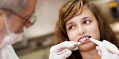 What to Expect After You Get Braces, Avon, Ohio