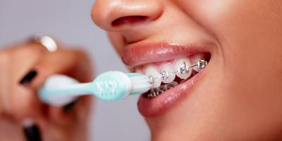 3 Tips for Cleaning Your Teeth When You Have Braces, New Richmond, Wisconsin