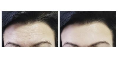 The Do's & Don'ts After a Botox® Treatment, Honolulu, Hawaii