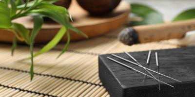 3 Misconceptions About Acupuncture, North Hempstead, New York