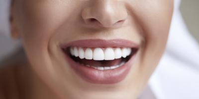 What's a Mini Dental Implant?, Lexington-Fayette Central, Kentucky