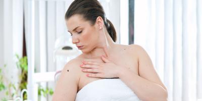 How to Prevent & Screen for Skin Cancer, Lincoln, Nebraska