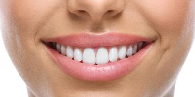 3 Ways to Keep Your Teeth White After a Cosmetic Dentistry Procedure , Anchorage, Alaska