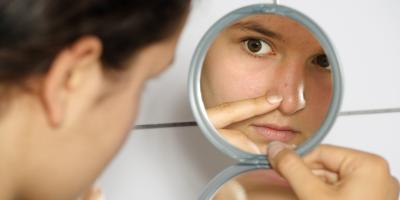 What to Know About Acne in Teens, Statesboro, Georgia
