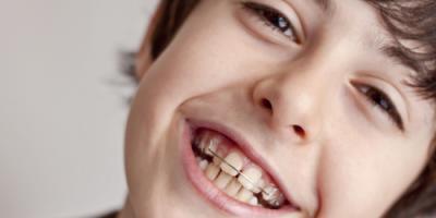 When Should Your Child Get Braces? , Brunswick, Ohio