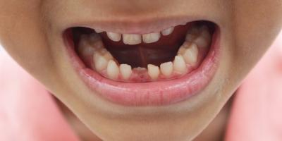 Baby Teeth? Who Cares?, Brunswick, Ohio
