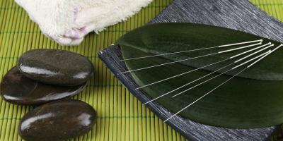 4 Common Myths About Acupuncture, Nyack, New York