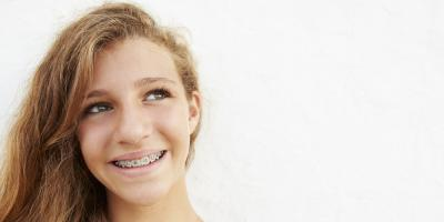 3 Differences Between Traditional Braces & Invisalign®, Foley, Alabama