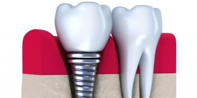 Dental Implants Explained: How Do They Work?, Springdale, Ohio