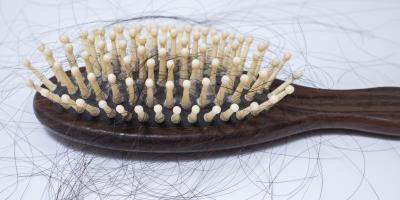 A Brief Guide to Alopecia, Lincoln, Nebraska
