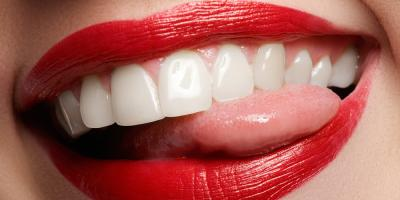 How to Prolong Teeth Whitening Results, St. Peters, Missouri