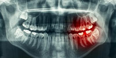 What Are Digital Dental X-Rays & How Often Do You Need One?, Westminster, Colorado