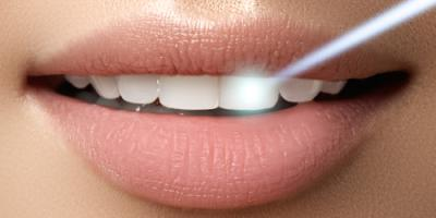 3 Powerful Benefits of Laser Dentistry, Prairie du Chien, Wisconsin