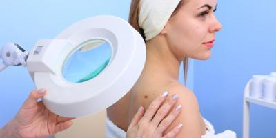 5 Common Skin Conditions Your Dermatologist Can Treat, Queens, New York