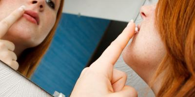 A Dentist's Guide to Oral Thrush, Cankers, & Cold Sores , Anchorage, Alaska