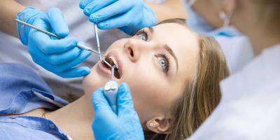 4 FAQ About Wisdom Tooth Extraction, Lexington, South Carolina