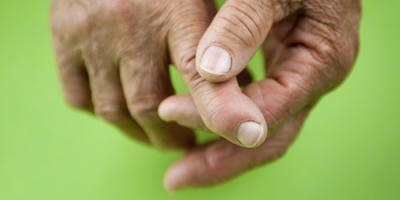 Your Top Questions About Rheumatoid Arthritis Answered, Albany, New York