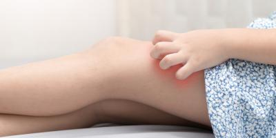 5 Natural Eczema Treatments for Children, High Point, North Carolina