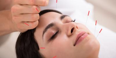 5 Benefits of Facial Rejuvenation Acupuncture, Manhattan, New York