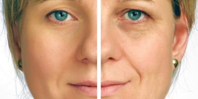 The Most Common Types of Facial Cosmetic Surgery, Texarkana, Texas