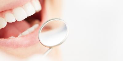 Safe Teeth Whitening: Possible Temporary Side Effects, Foley, Alabama
