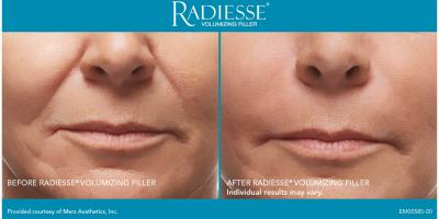 Restore collagen. Replenish volume. Refresh YOU!, Sugar Land, Texas