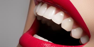 How Dry Mouth Leads to Gum Disease, Geneva, New York